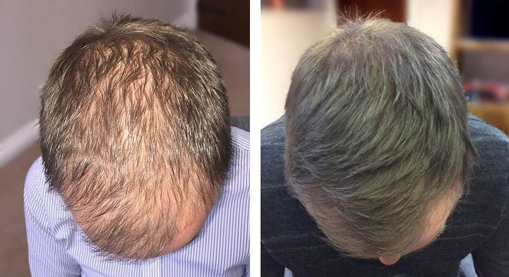 Hair restoration results for Andrew