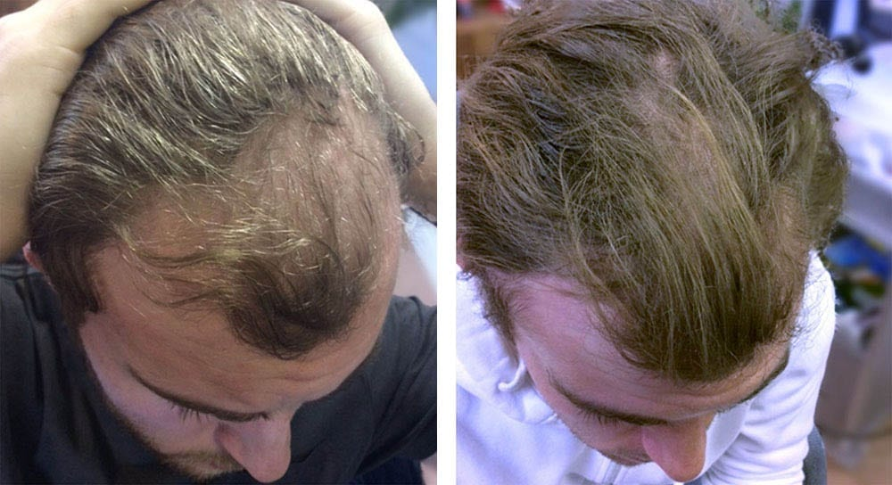 Hair restoration results for Chris