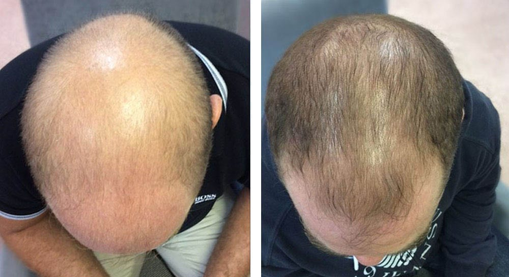 Hair loss treatment for Paul