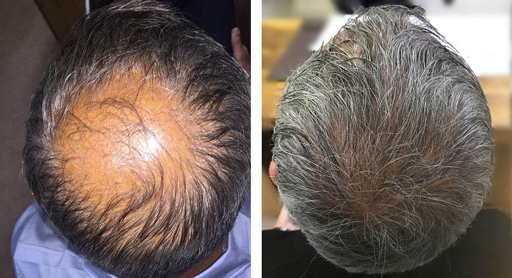 Hair Transplant Results for Tony