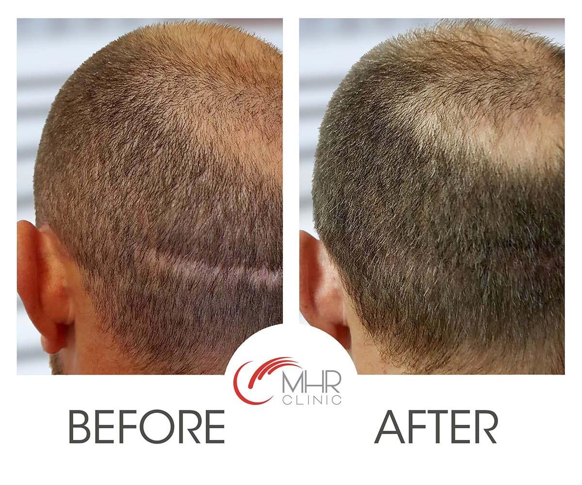 Ryan Sidebottom MHR clinic