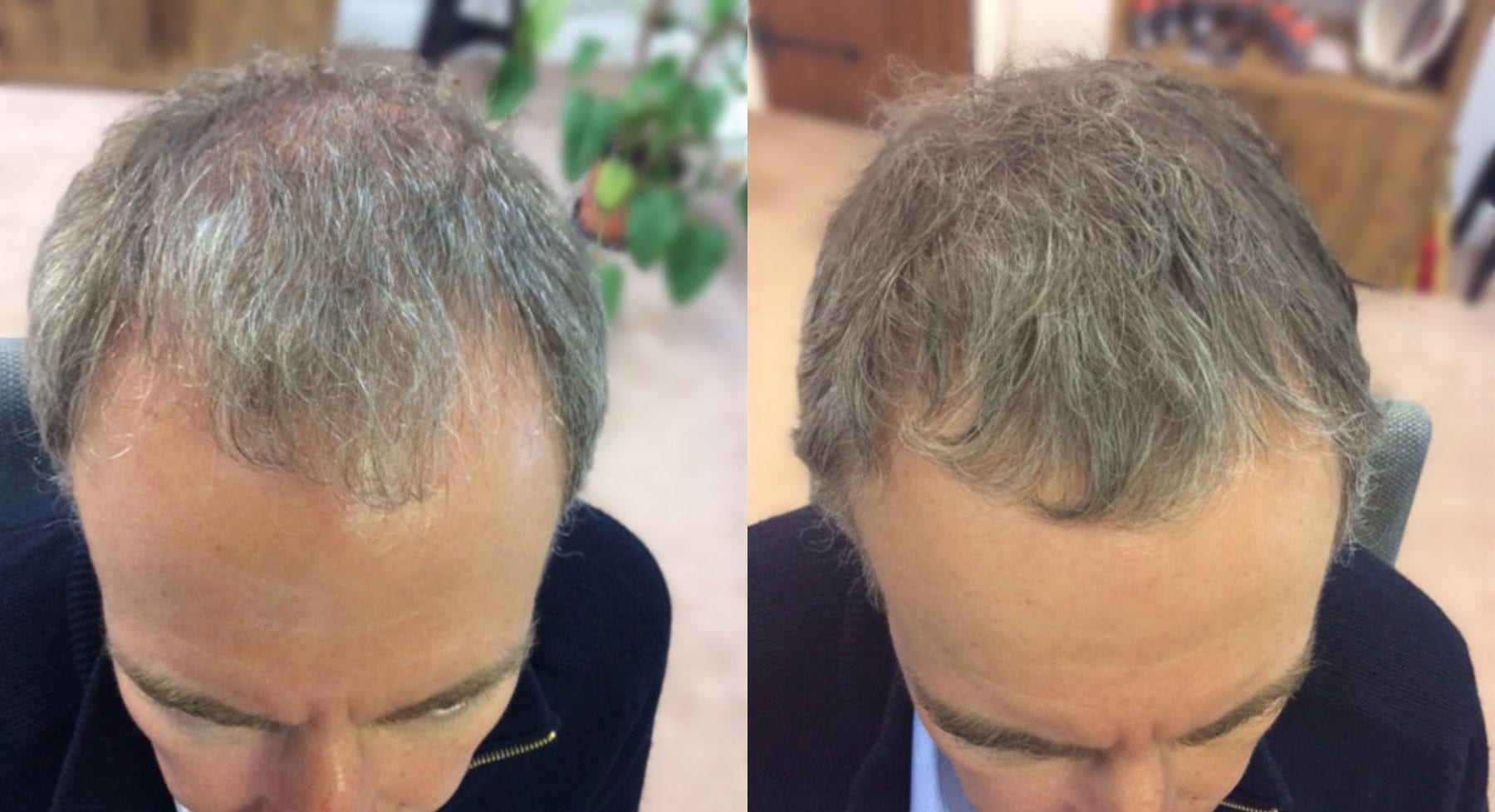 Hair Restoration Results Brian