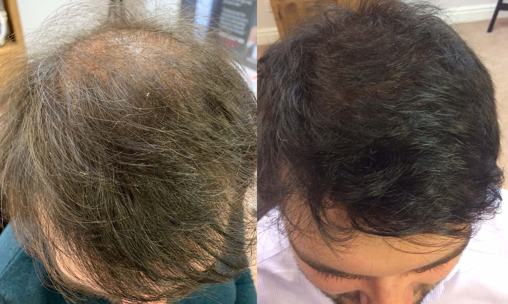 Hair Restoration Harrogate/Manchester/Leeds