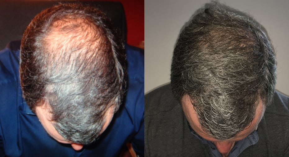 Hair Restoration Results Craig
