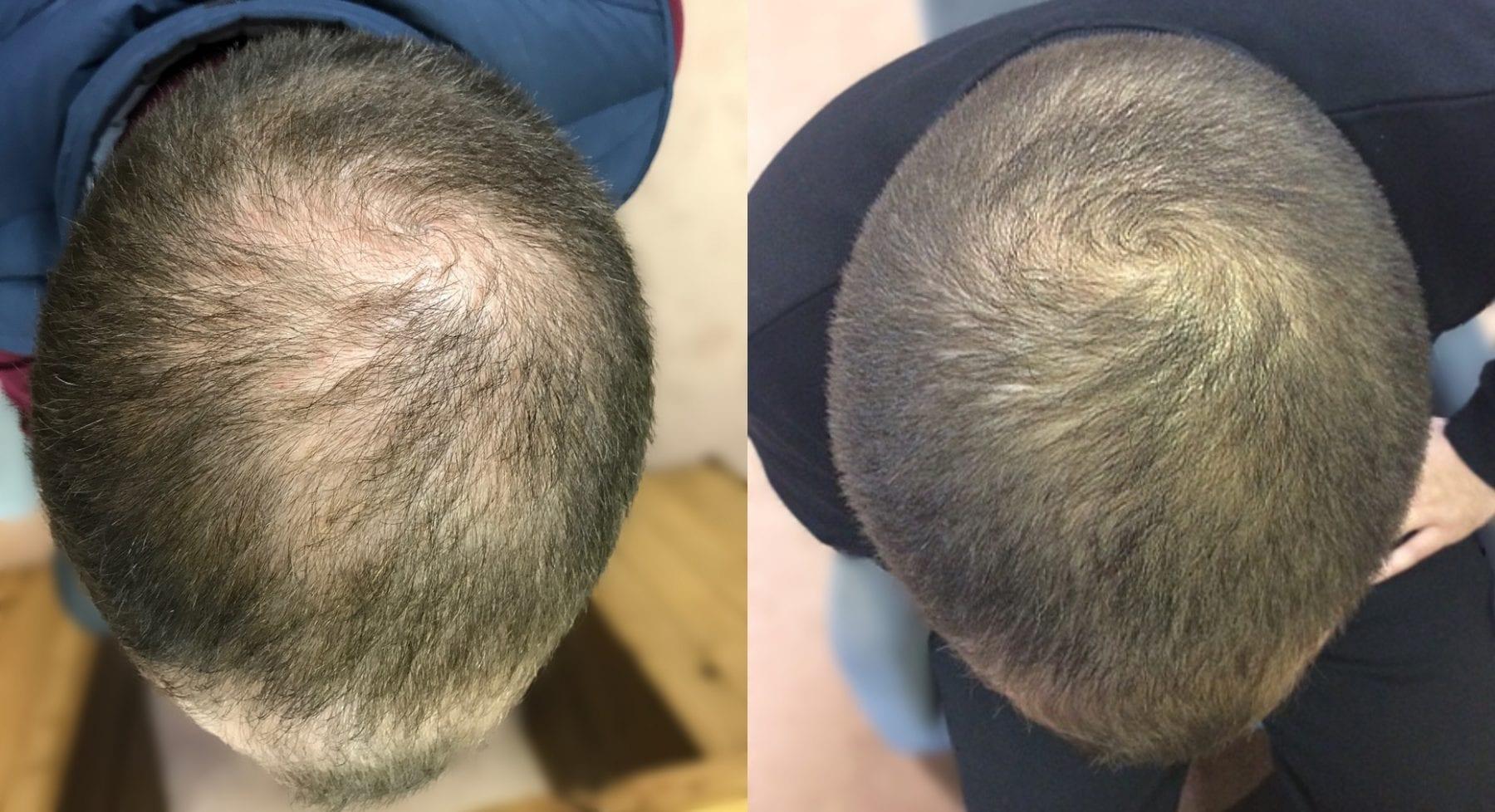 Hair Restoration Results Dale B