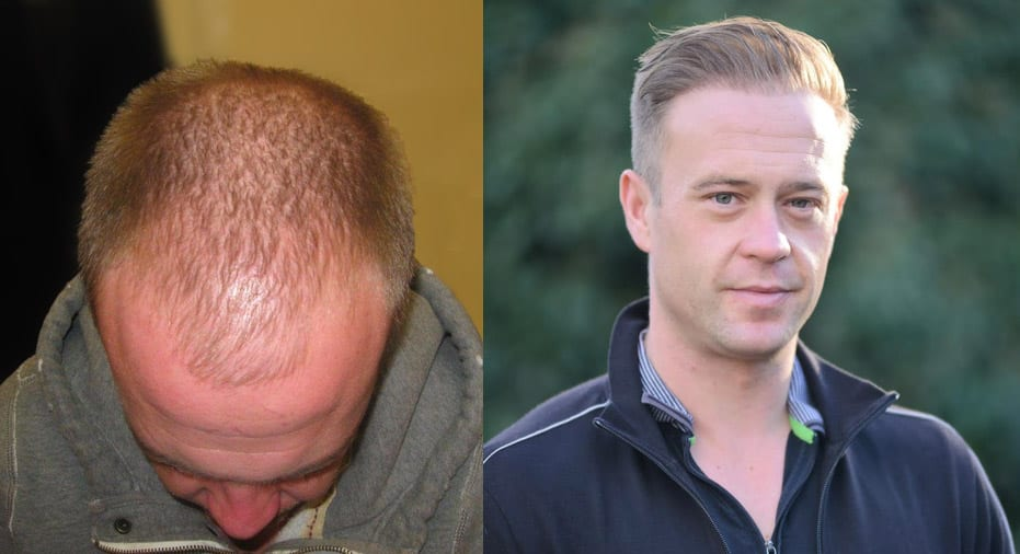 Hair Restoration Results David C