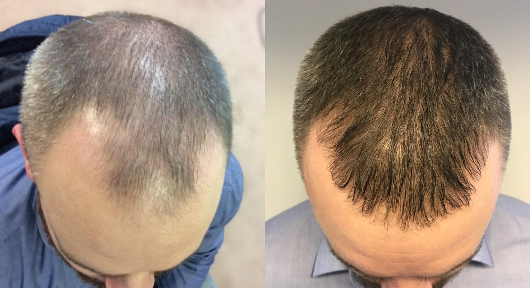 Hair Restoration Results David M