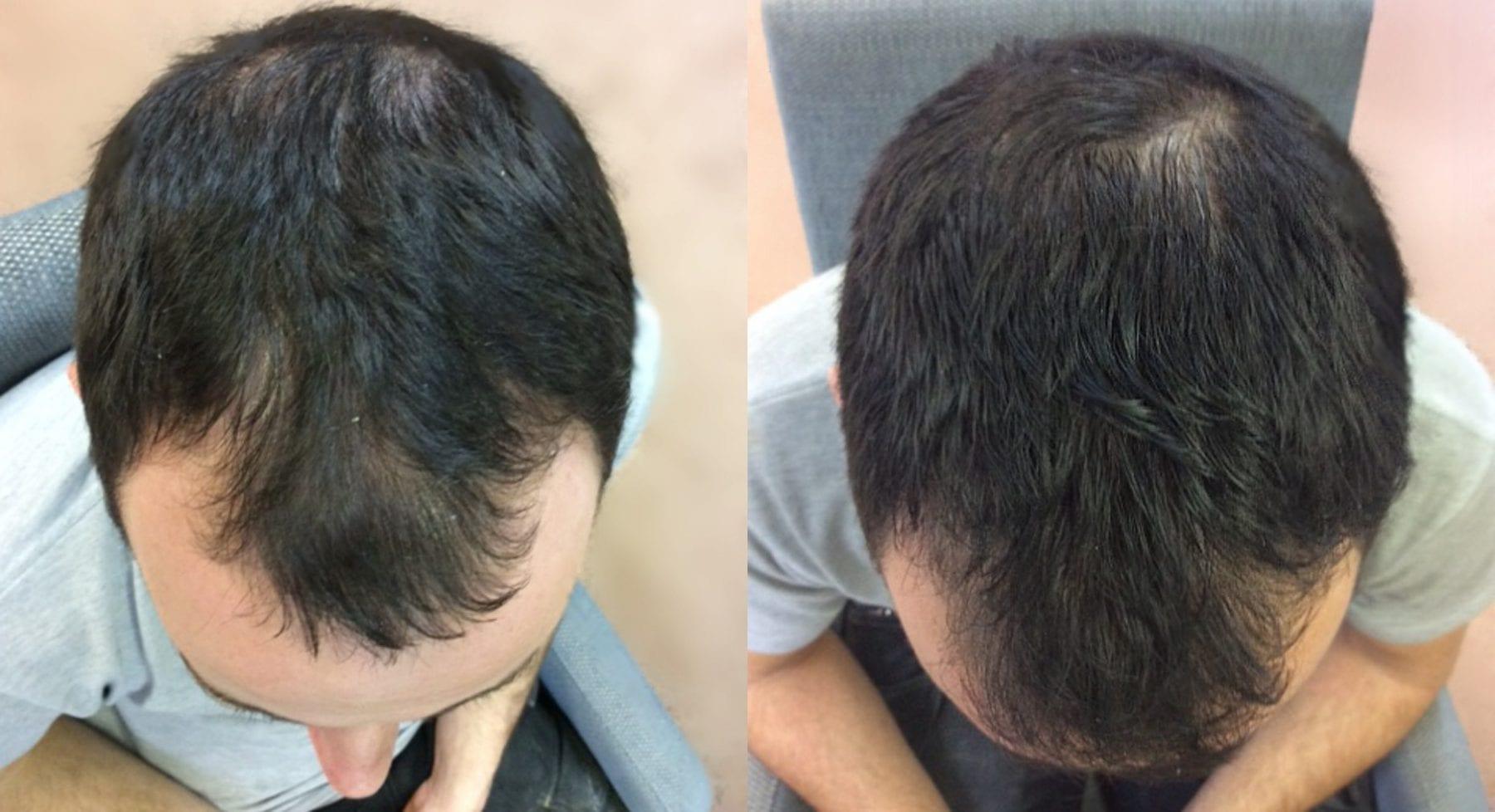 Hair Restoration Results Harry