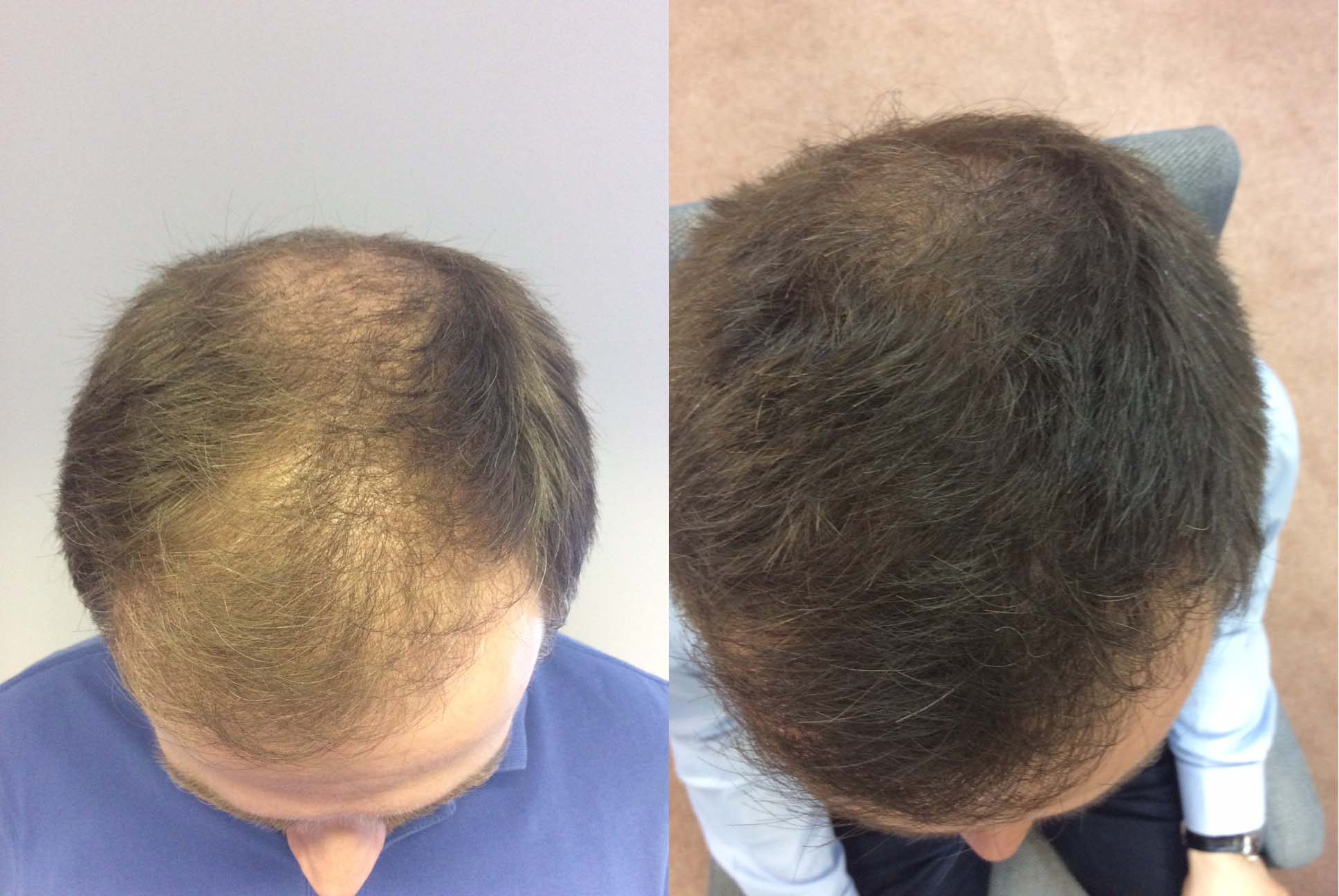 Hair Restoration Results James L