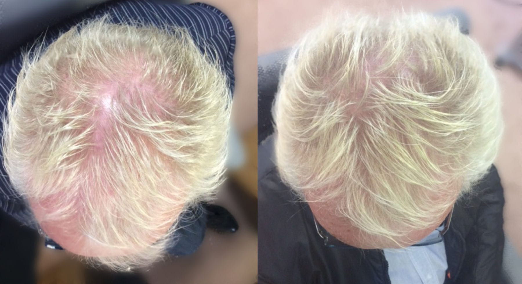 Hair Restoration Results James