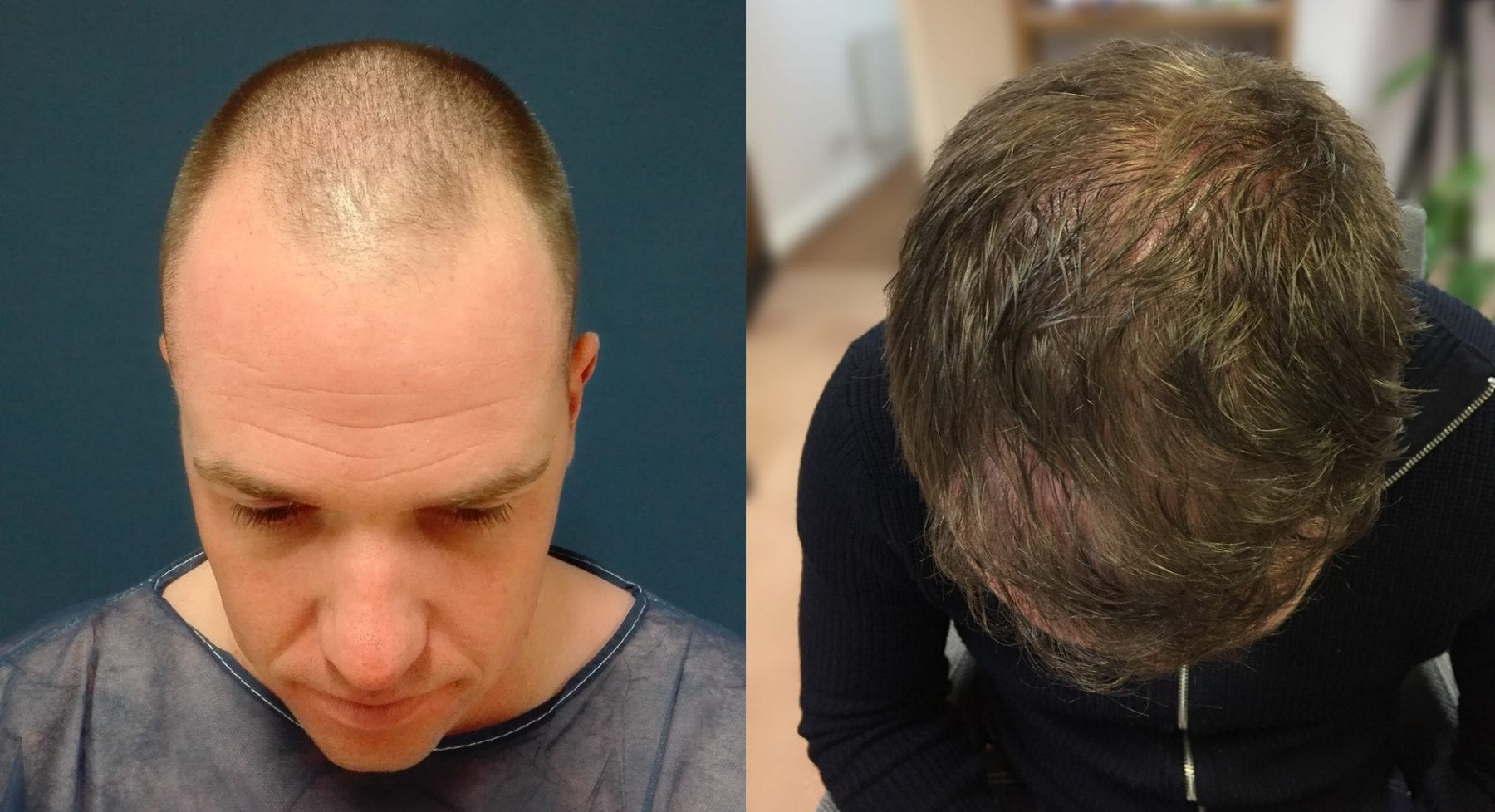 Hair Restoration Results Jonny S
