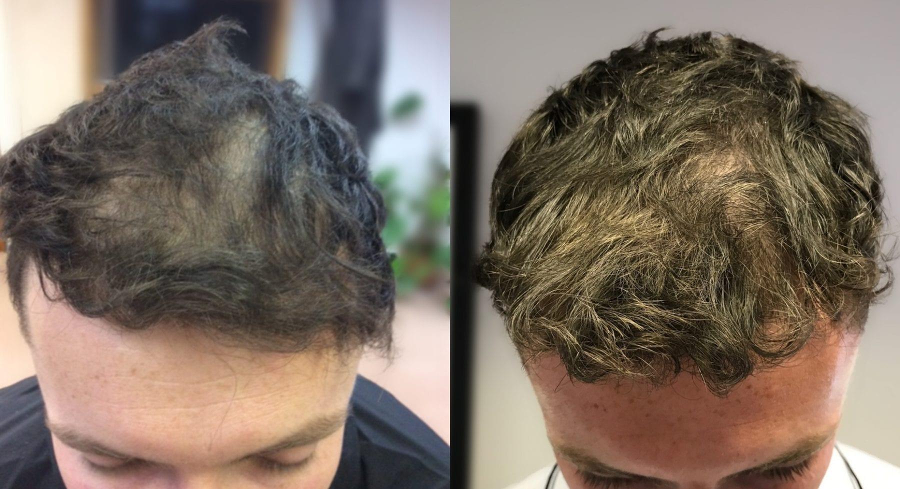 Hair Restoration Results Josh