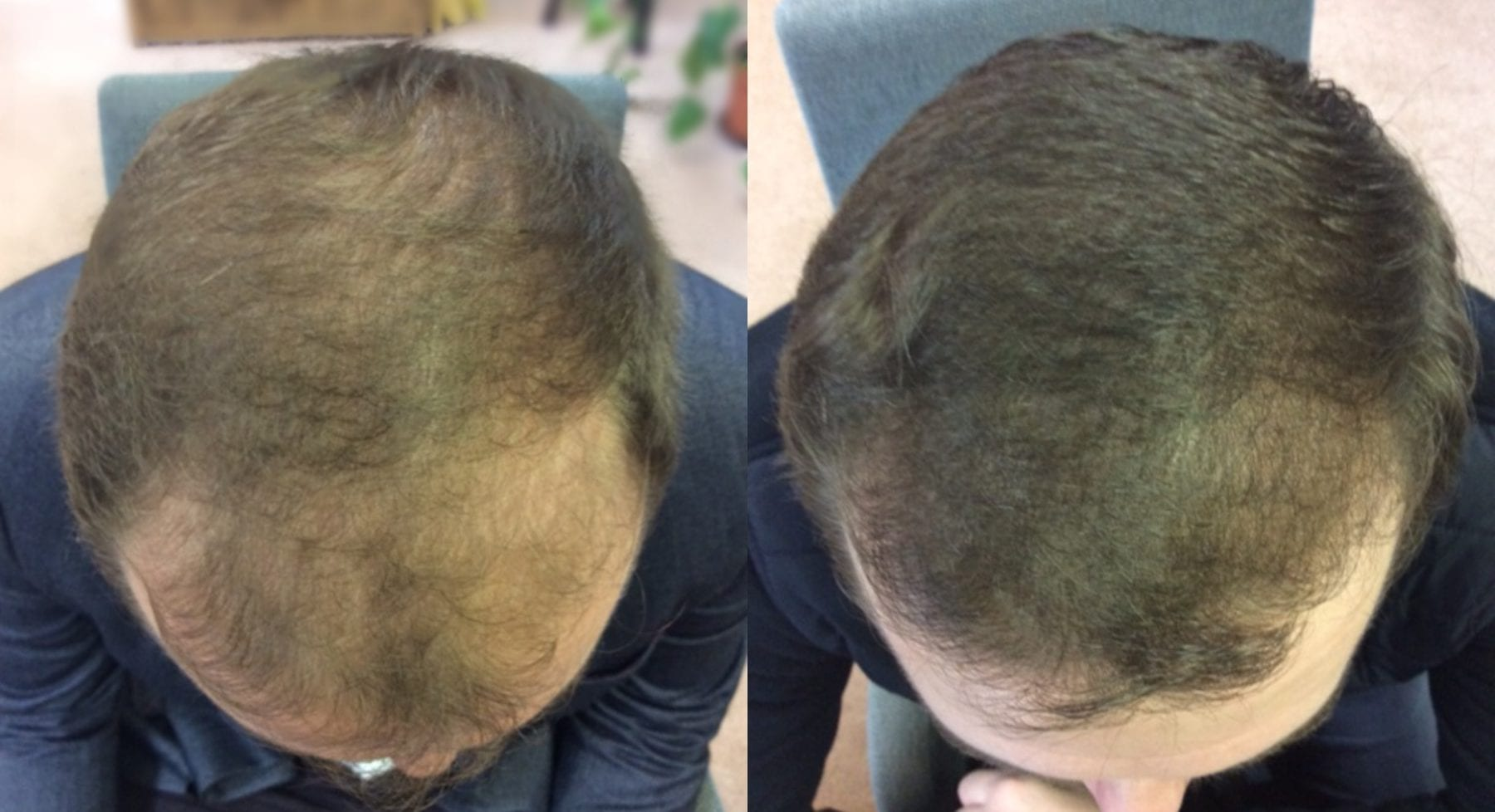 Hair Restoration Results Joshua B