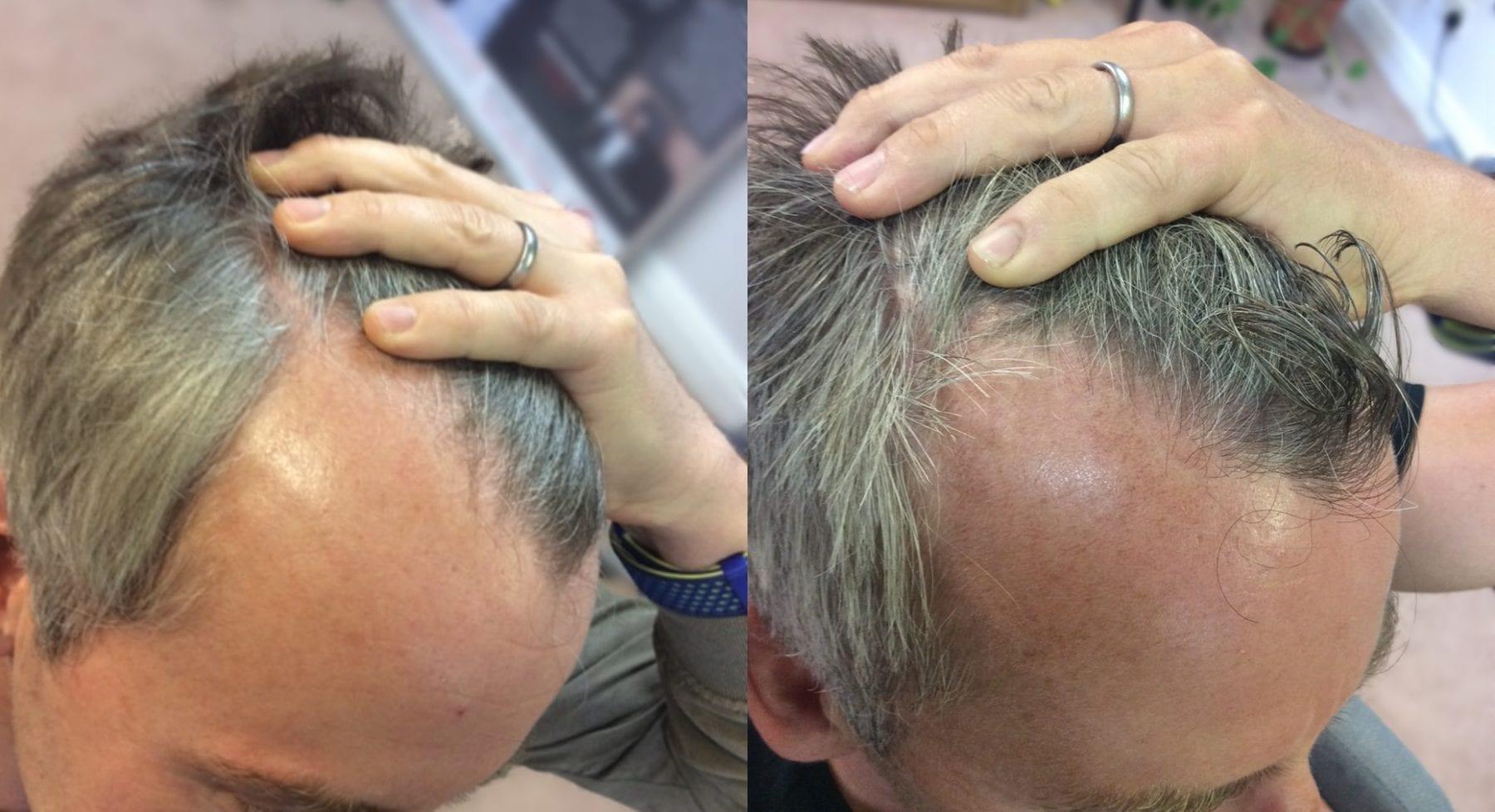 Hair Restoration Results Mark D