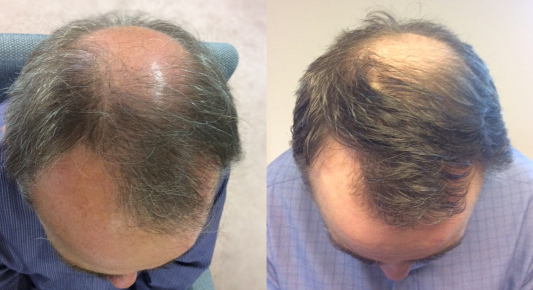 Hair Restoration Results Mark W
