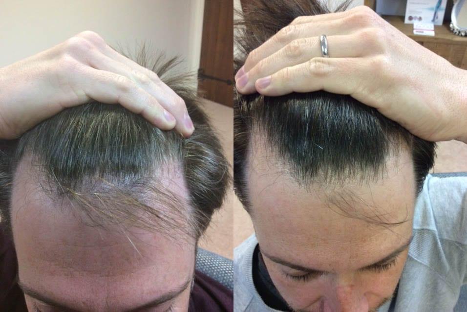 Hair Restoration Results Mr H