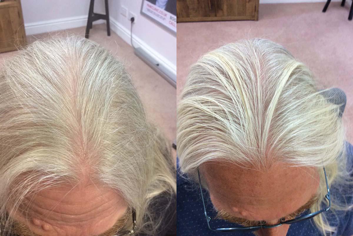 Hair Restoration Results Mr M