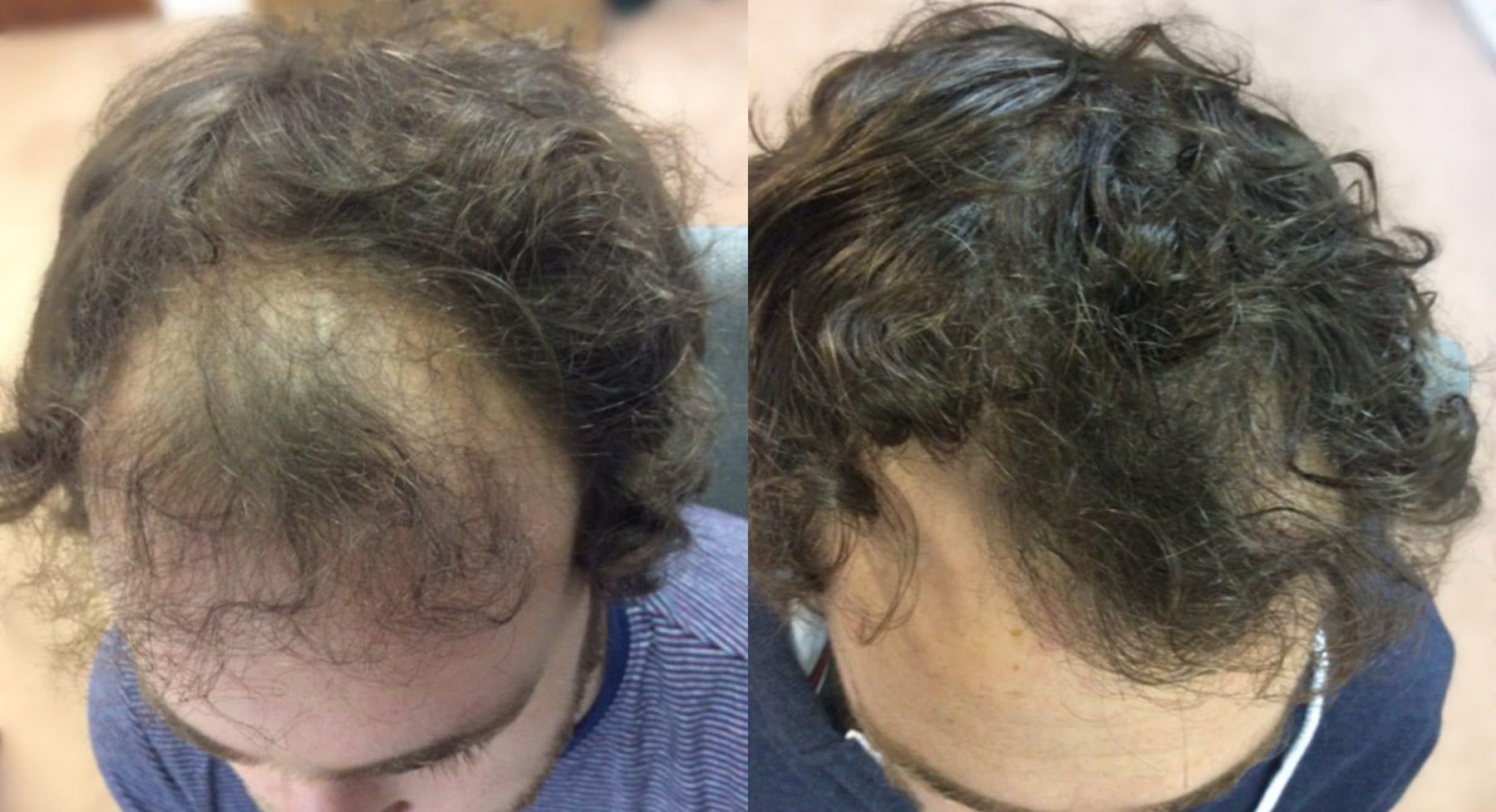 Hair Restoration Results Mr B