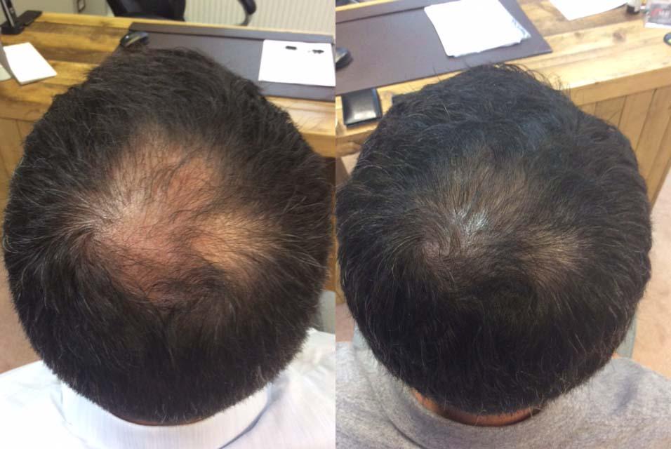 Hair Restoration Results Mr F