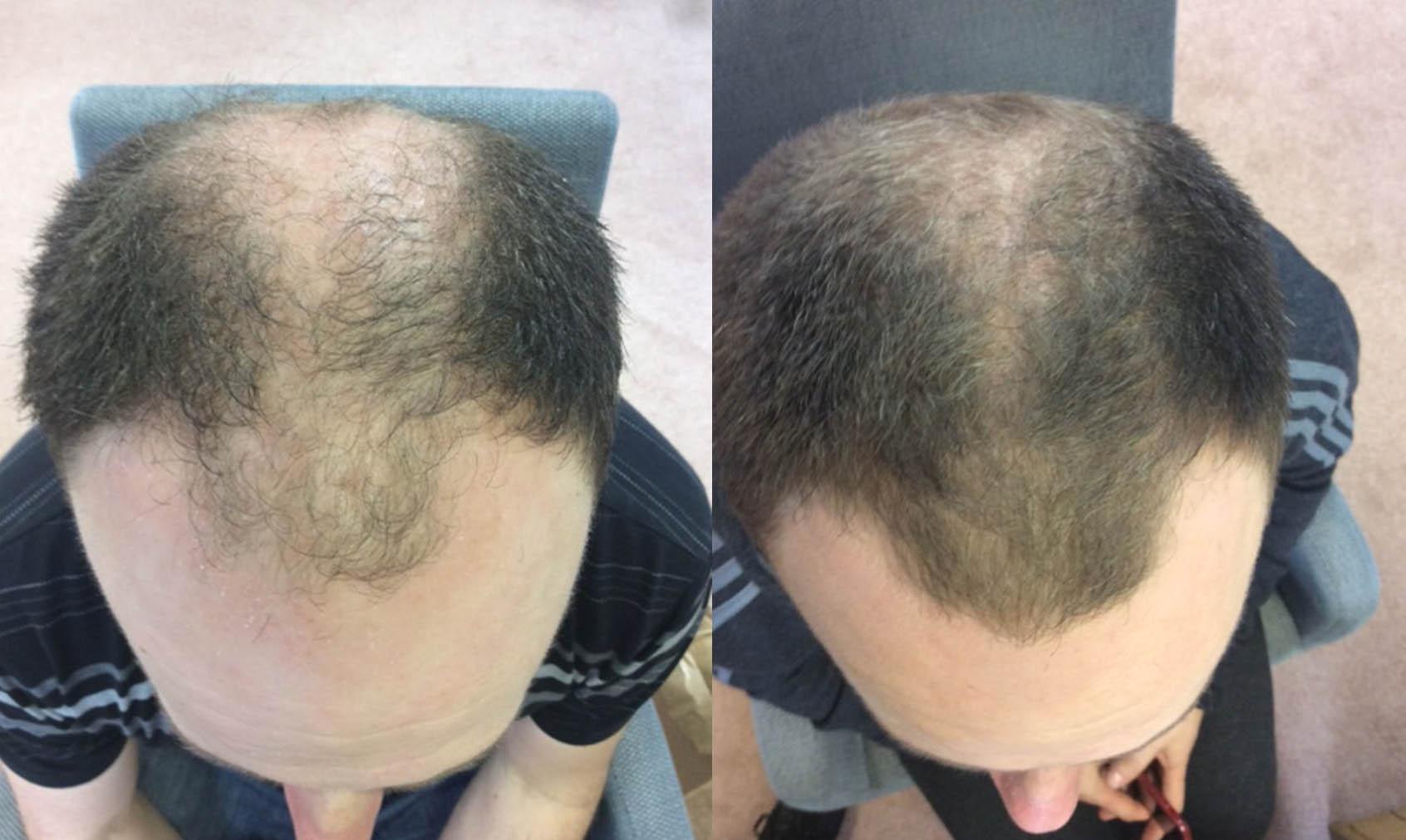 Hair Restoration Results Mr J
