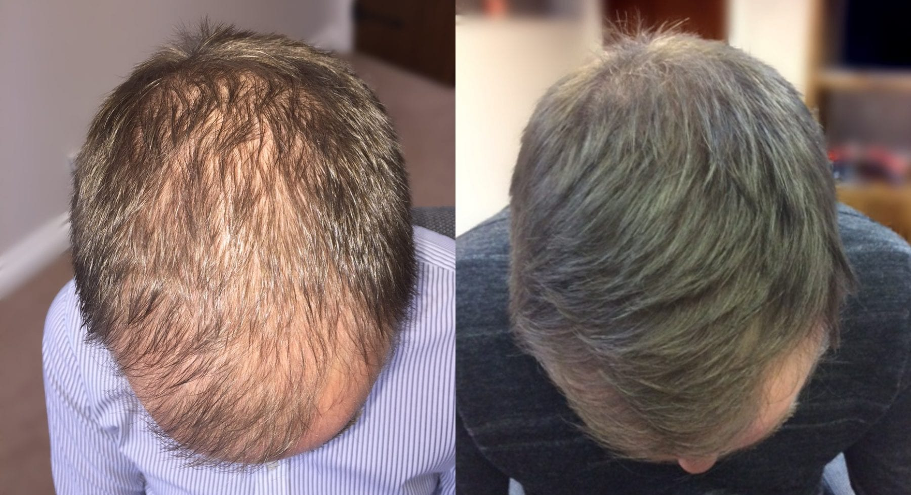 Hair Restoration Results Mr K