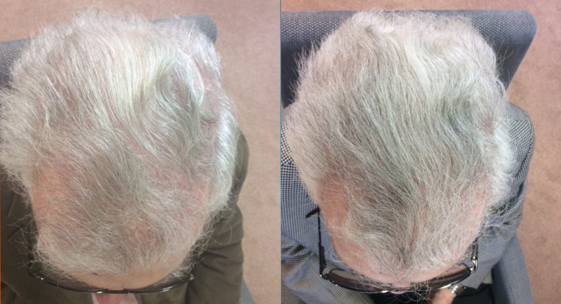 Hair Restoration Results Mr R