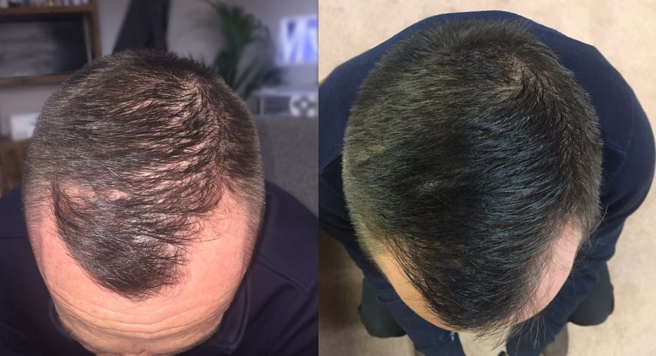 Hair Restoration Results Mr S