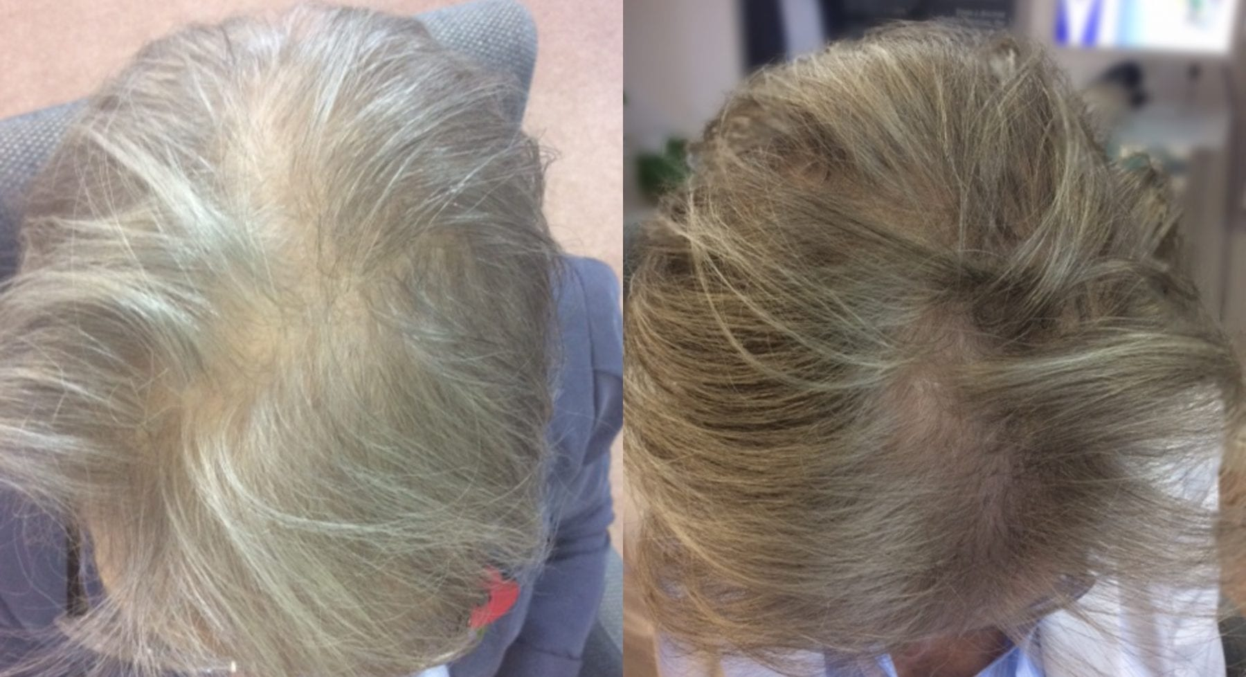 Hair Restoration Women Results Mrs R