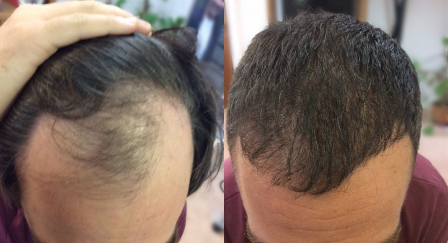 Hair Restoration Results Mr T