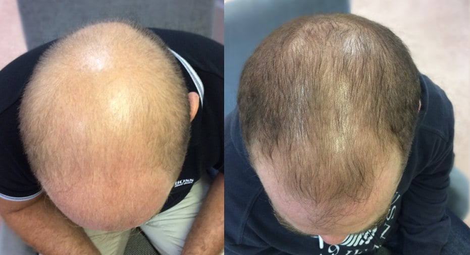 Hair Restoration Results Paul