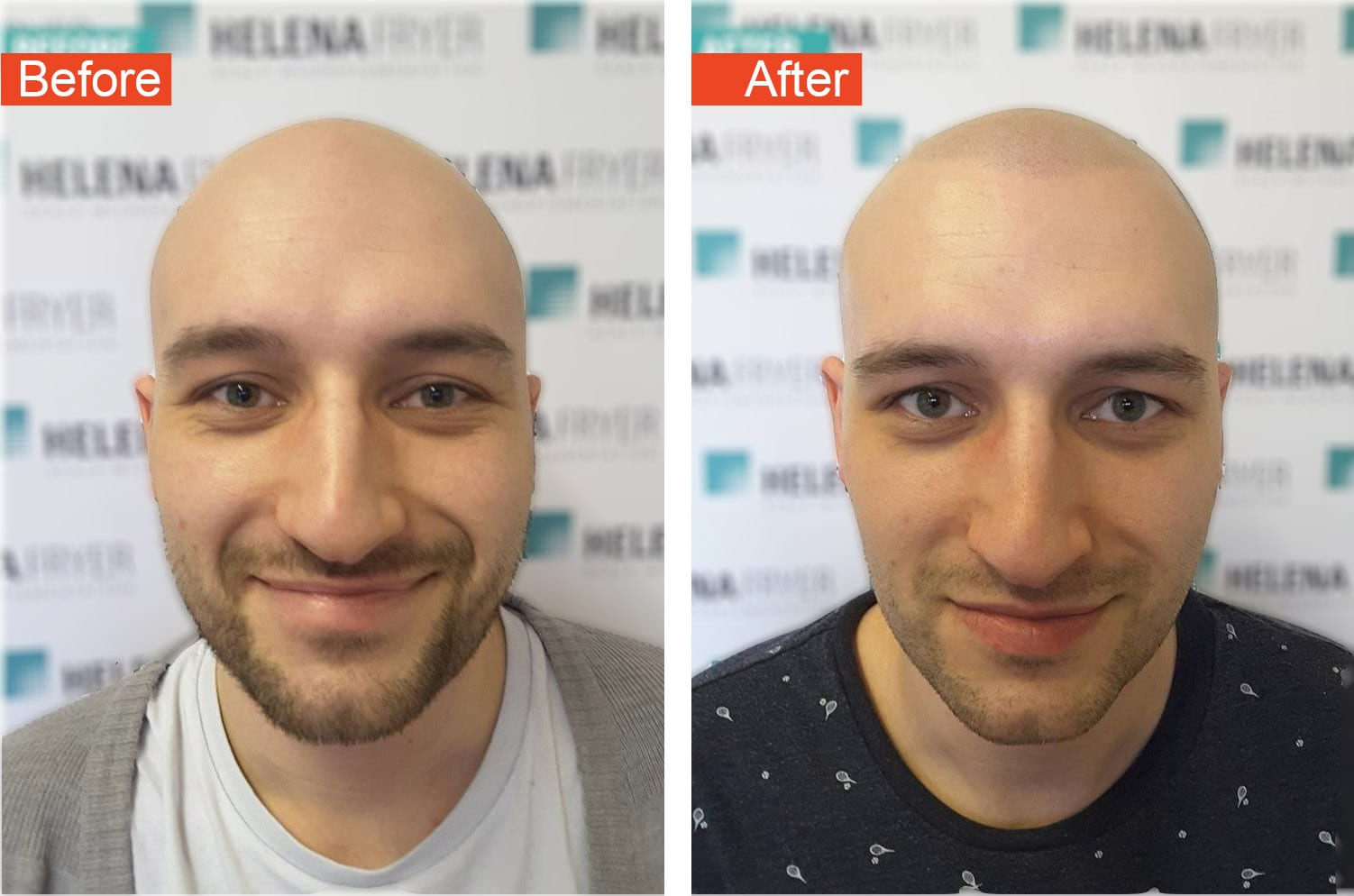 michael vaughan hair restoration