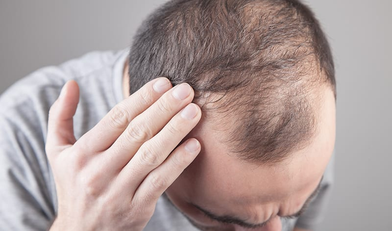 Undo damage done to hair by stress, alcohol & poor sleep patterns