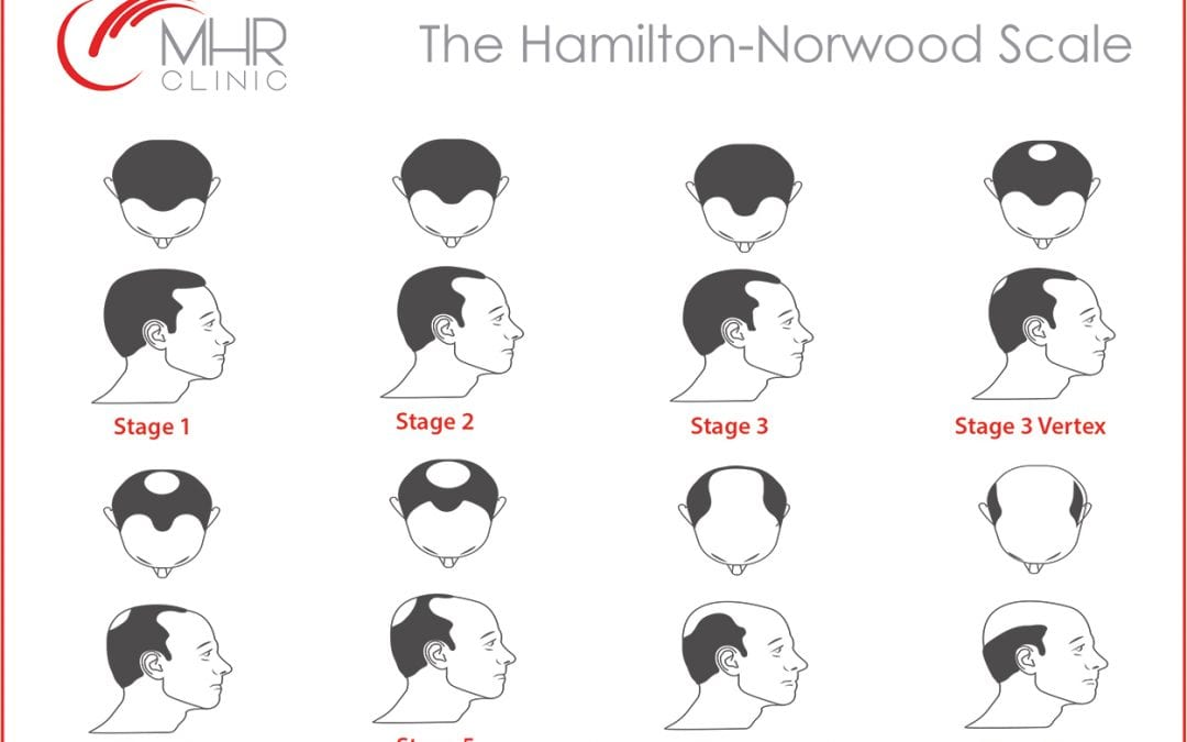 The Hamilton-Norwood Scale of Baldness & Your Hair Treatment