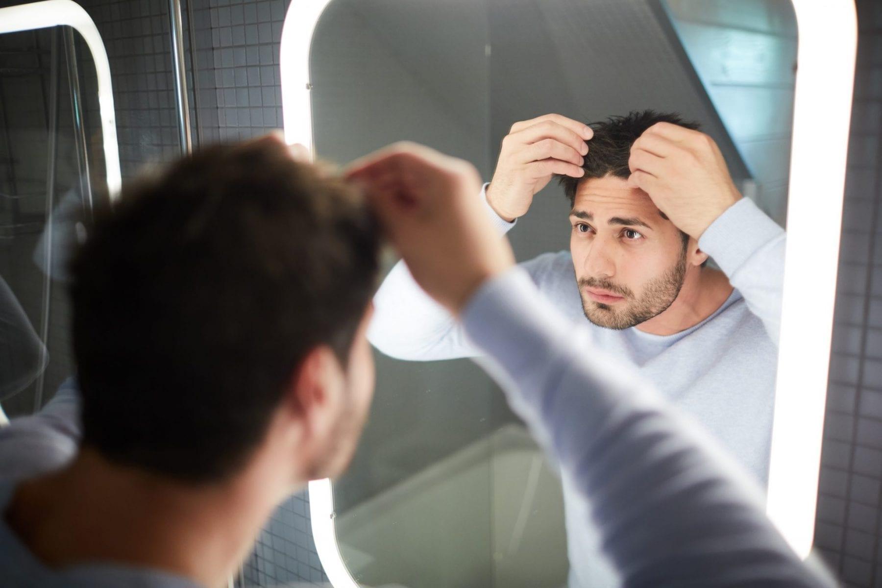 Young Men hair loss