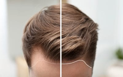 How long does a hair transplant last?   MHR Clinic UK
