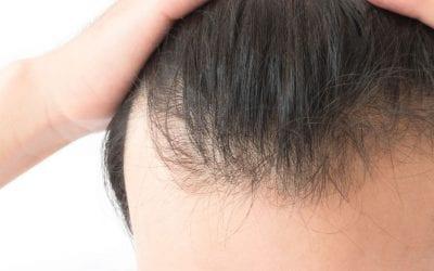 Does long hair cause more hair loss?