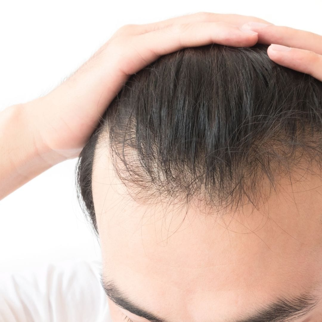 Image of a man with longer hair with signs of hairloss