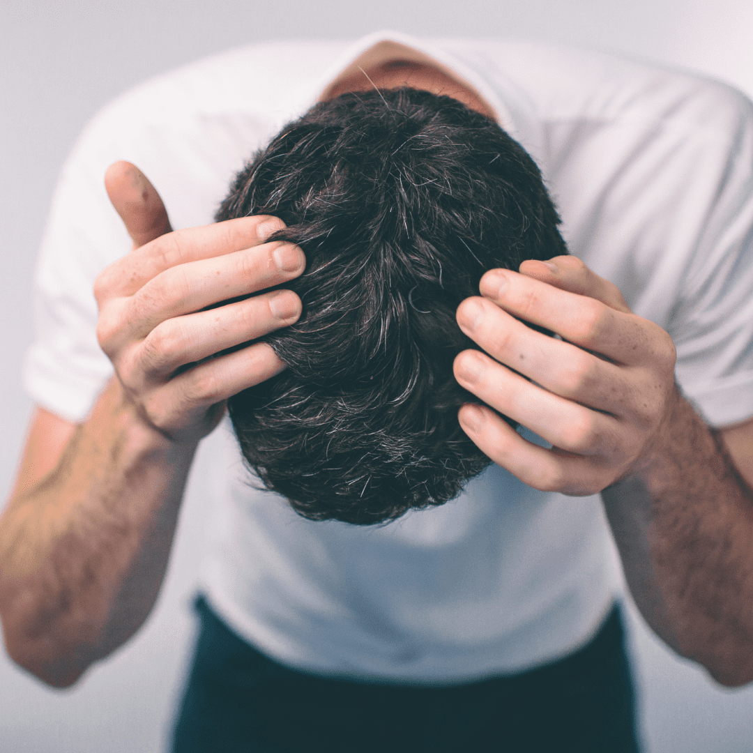 a sign of balding at 20 is hair loss at the crown of your head.
