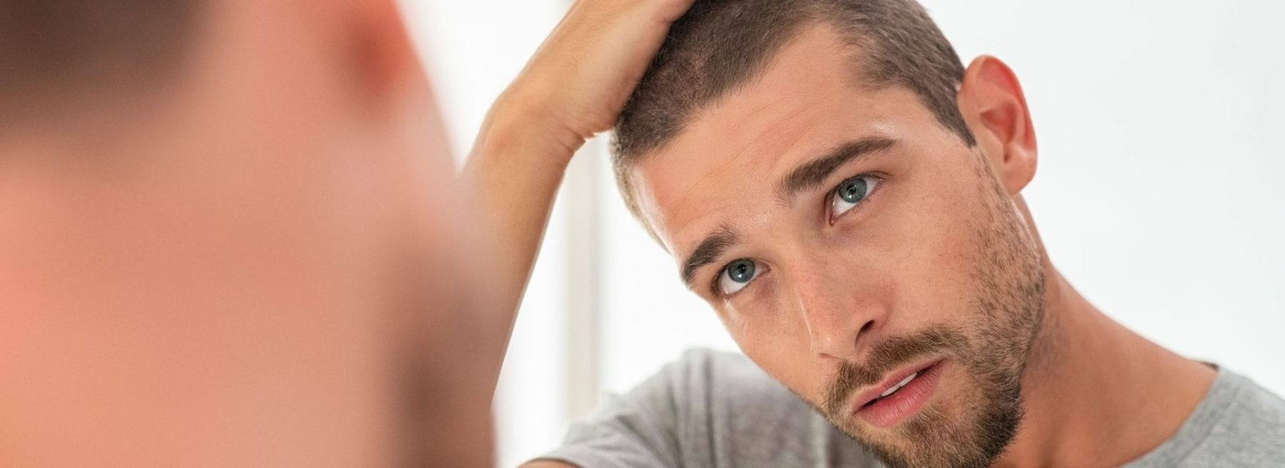 Signs of balding at 20 years old in males.