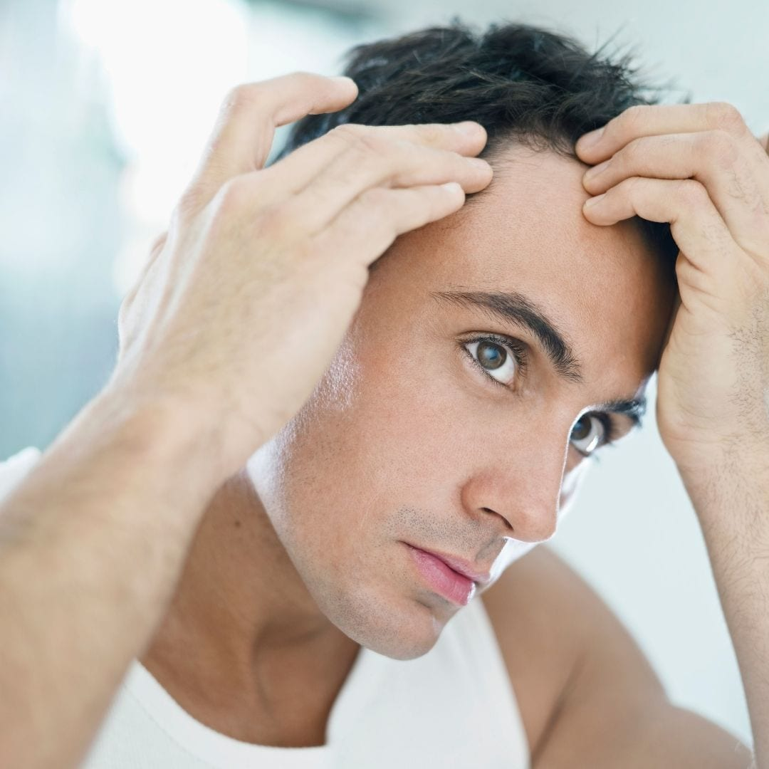 A sign of balding in young adults is a receding hairline