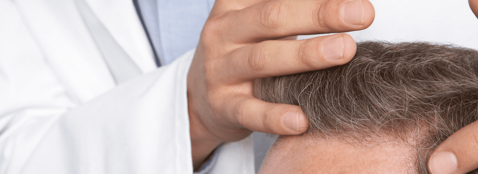 What to expect after a hair transplant