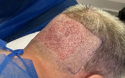 Do FUE hair transplants cause scarring?