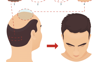How to heal and conceal FUT hair transplant scars
