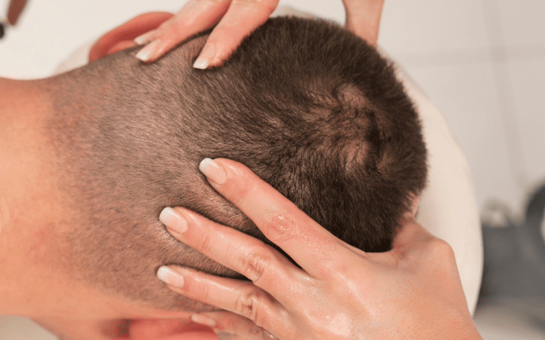 Five ways to make your hair grow faster after a hair transplant
