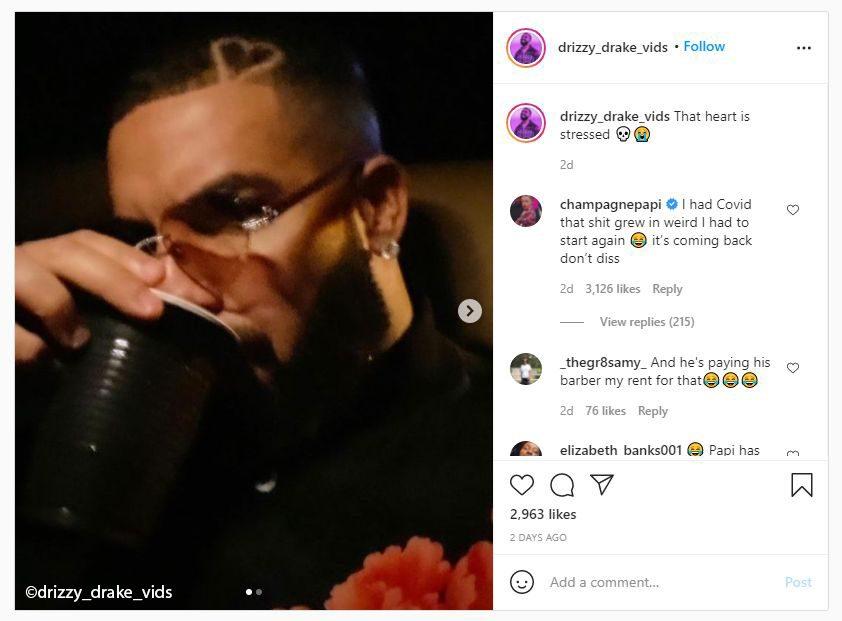 Drake may need treatments or a hair transplant to reverse COVID hair loss
