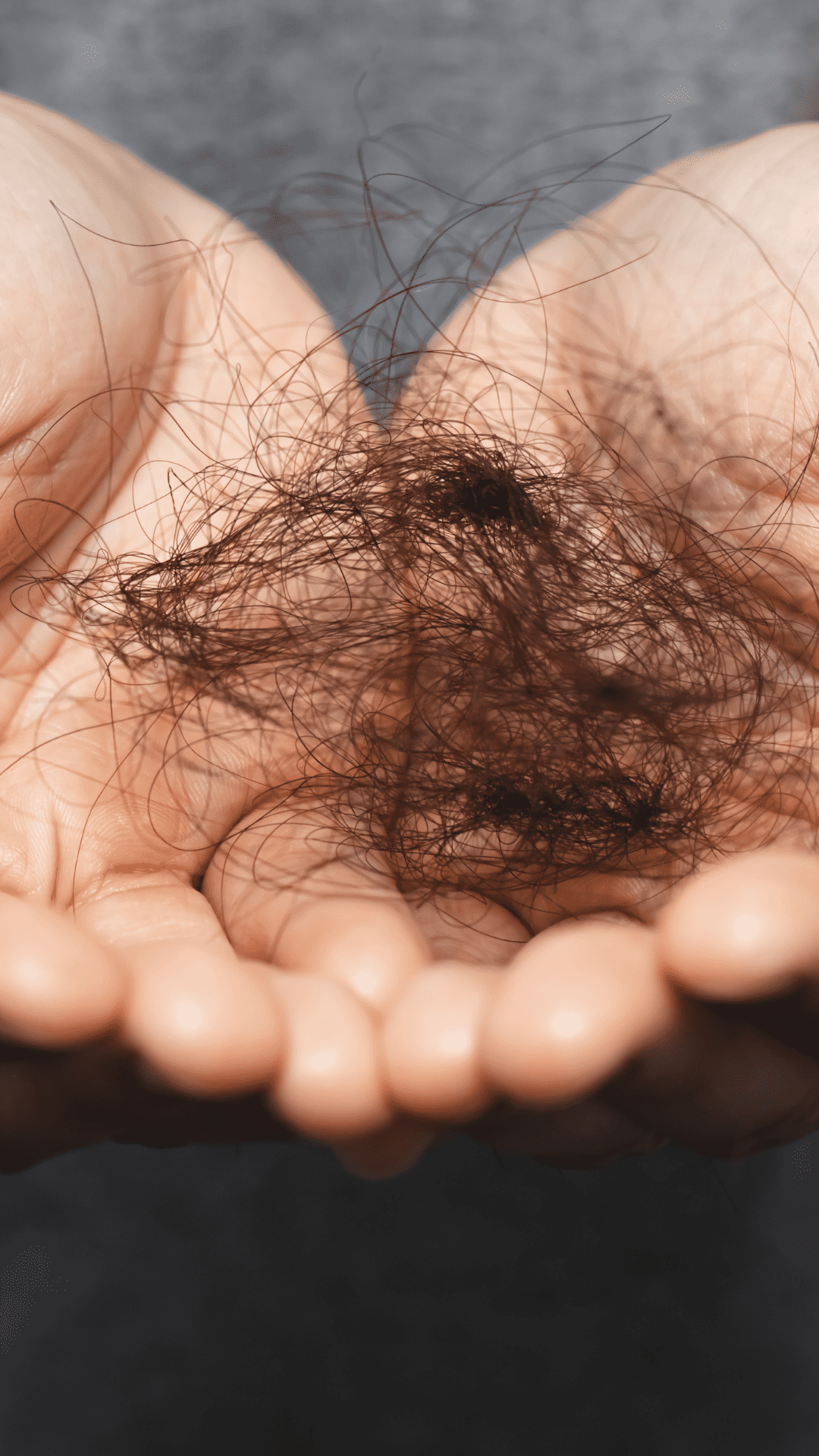 The increase in hair shedding and loss as a result of anti depressant drugs